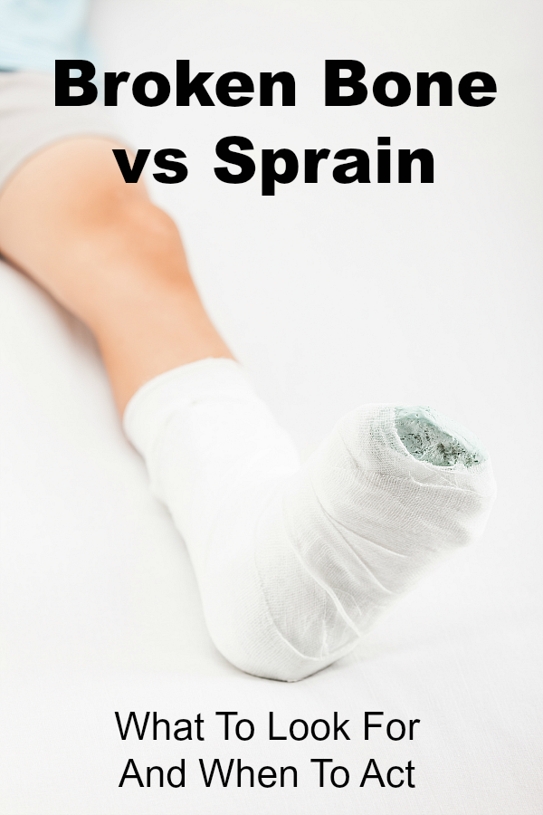 Broken Bone vs Sprain